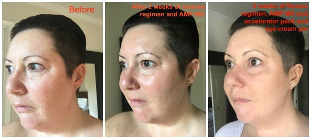 my-6-week-before-and-after-Rodan + Fields
